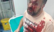 Stefan Cvetković: Pokušali su da me ubiju